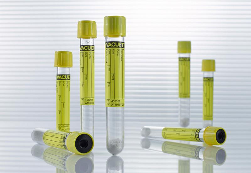 Vacuette® Virtsanäyteputki CCM 5/4 ml, 13 x 75mm